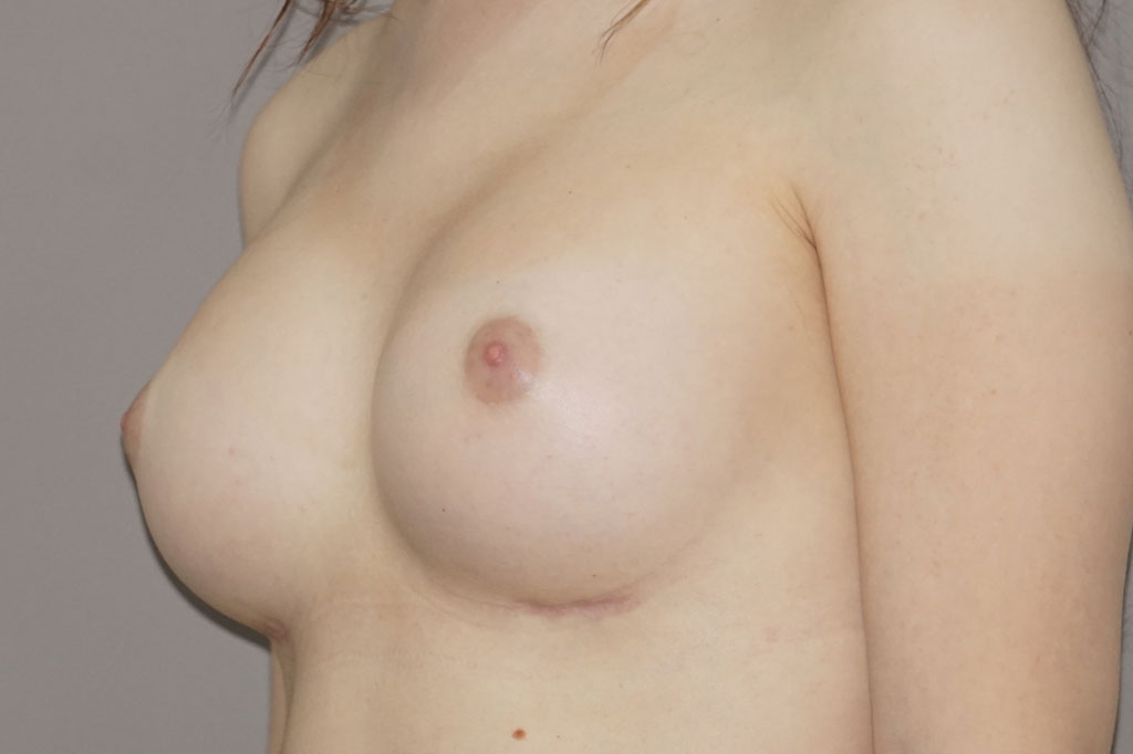Male to female Breast augmentation case01 Before & after photos 04