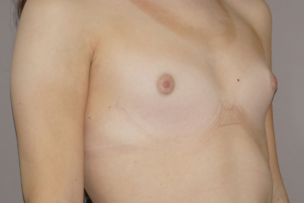 Male to female Breast augmentation case01 Before & after photos 05