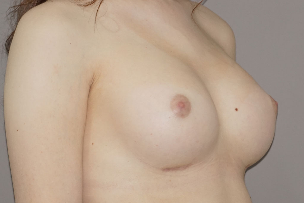 Male to female Breast augmentation case01 Before & after photos 06