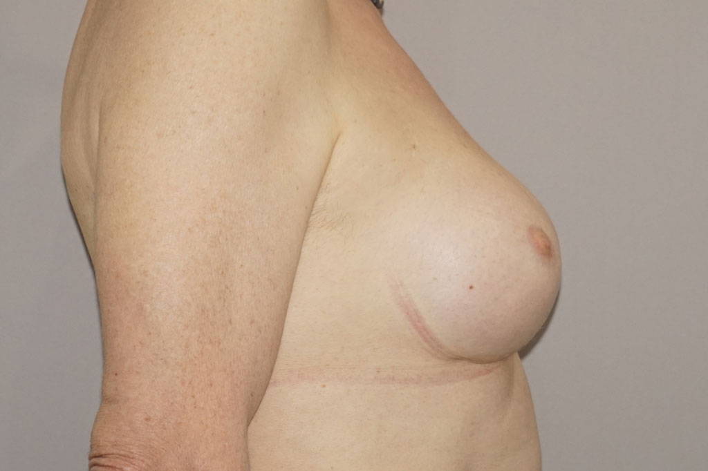 Male to female Breast augmentation case03 Before & after photos 04