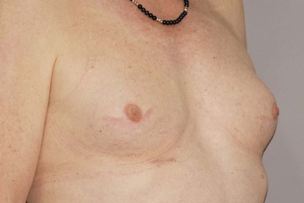 Male to female Breast augmentation case03 Before & after photos 05