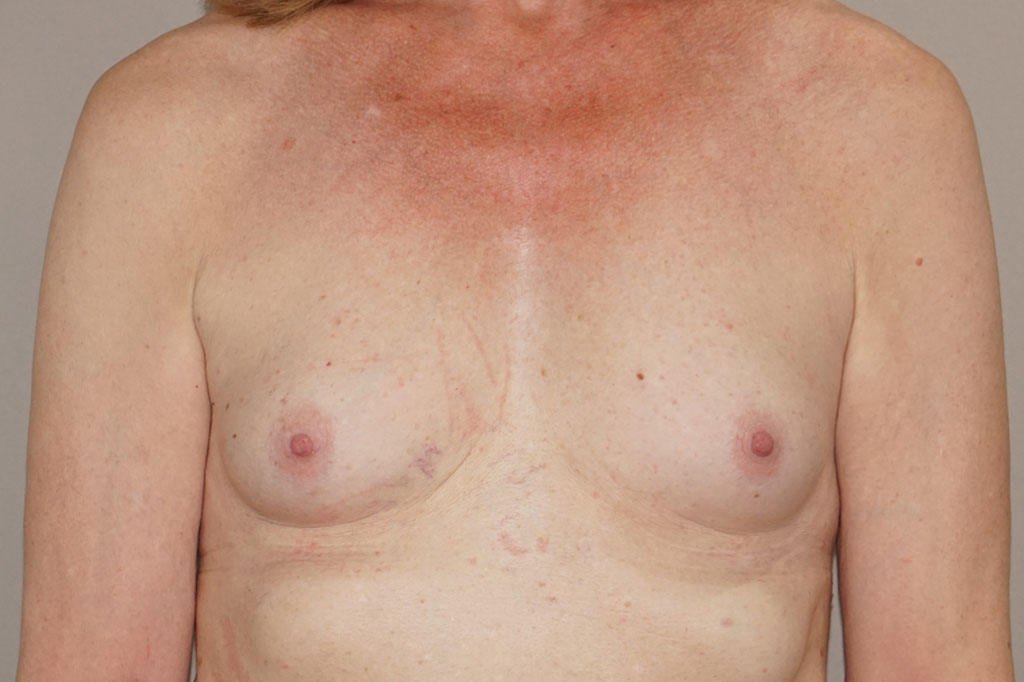 Male to female Breast augmentation Before & after photos 01