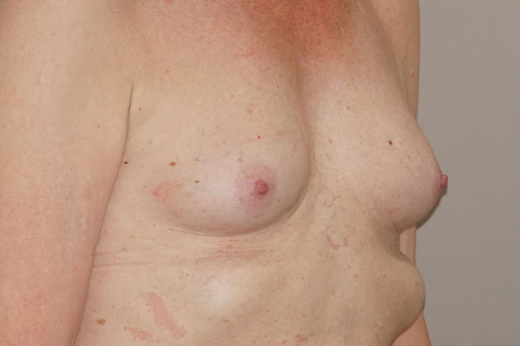 Male to female Breast augmentation Before & after photos 03