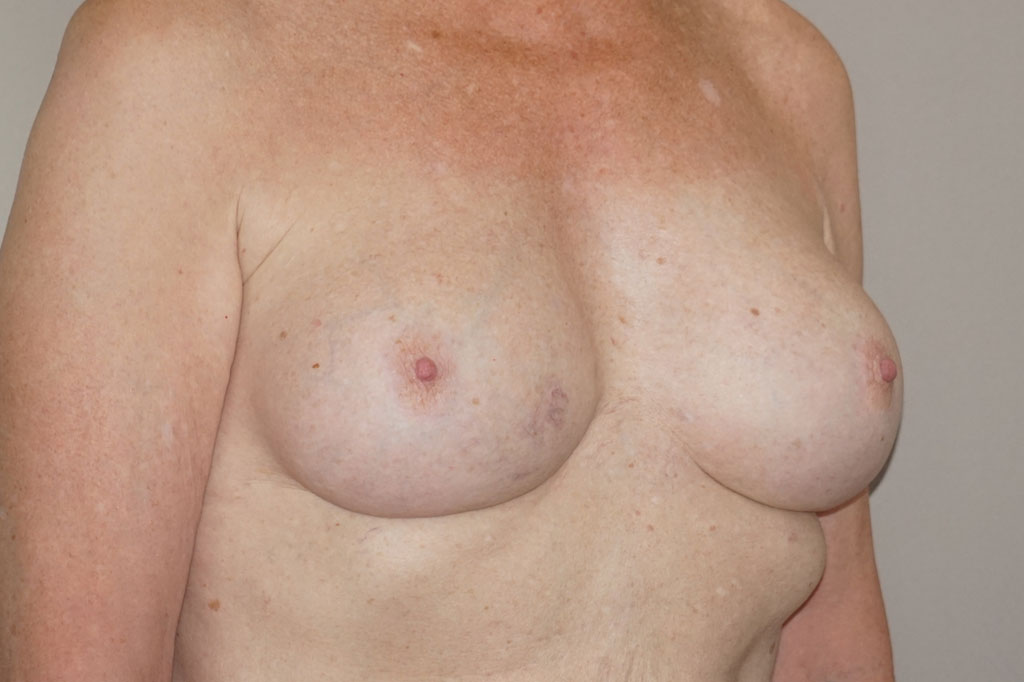 Male to female Breast augmentation Before & after photos 04