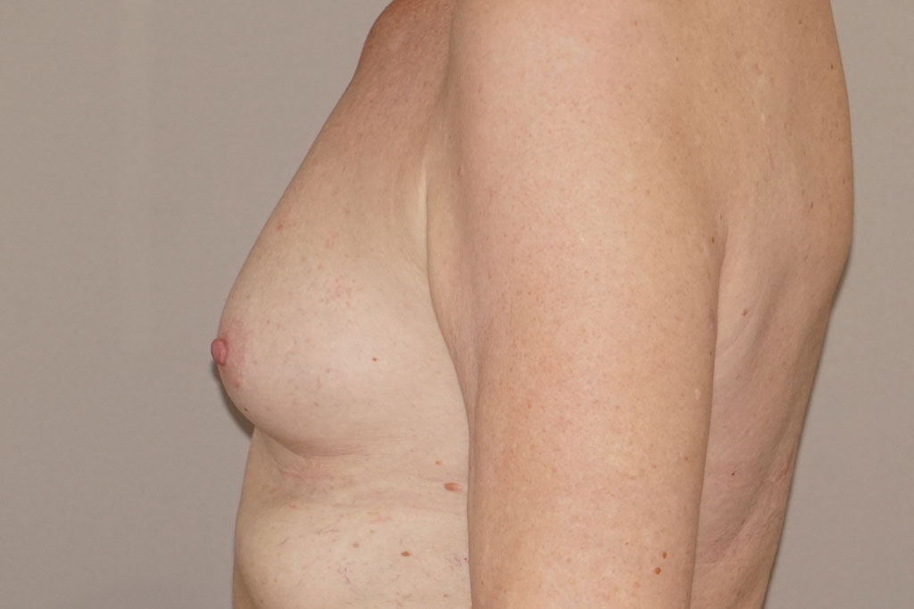 Male to female Breast augmentation Before & after photos 05