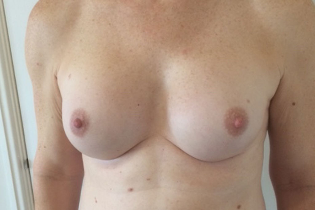 Male to female Breast augmentation
