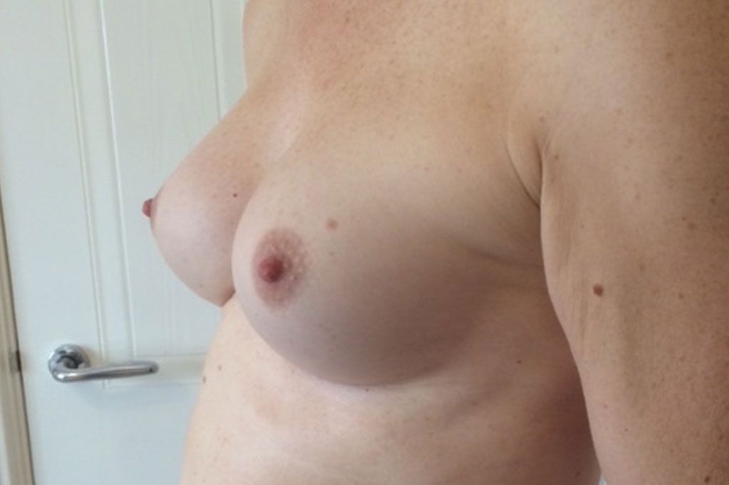 Male to female Breast augmentation Before & after photos 06