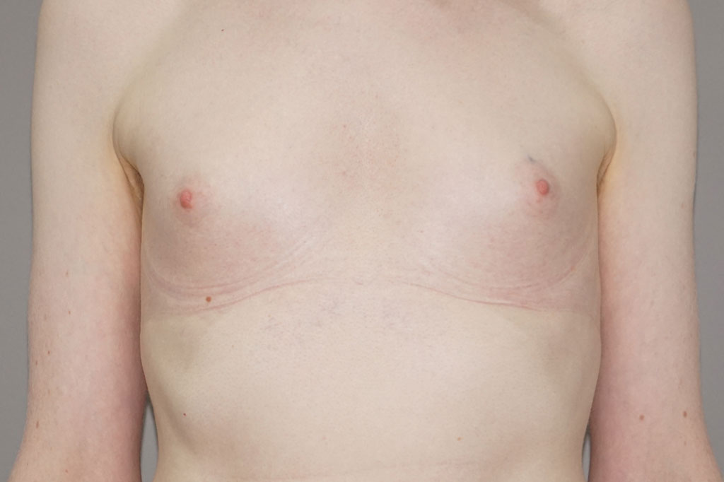 Male to female Breast augmentation case06 Before & after photos 01