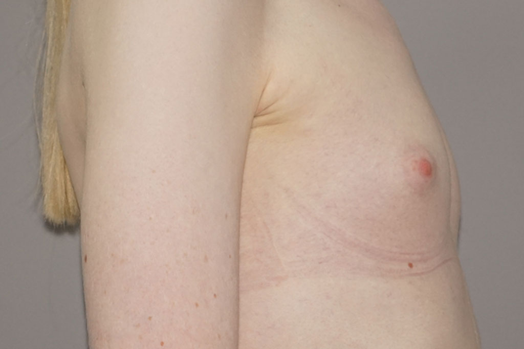 Male to female Breast augmentation case06 Before & after photos 05