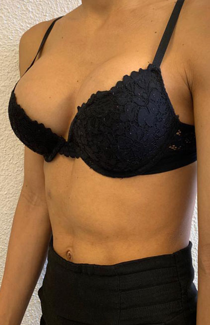 Male to female Breast augmentation case07 Before & after photos 03