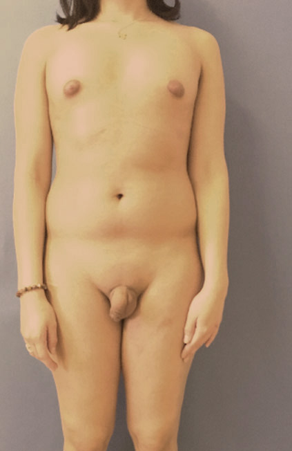 Male to female Vaginoplasty Before & after photos 01