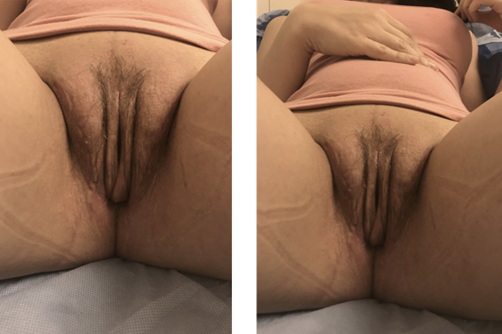 Male to female Vaginoplasty Before & after photos 03