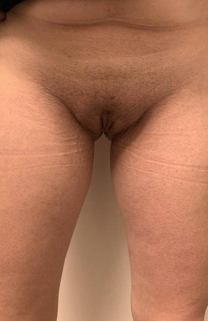 Male to female Vaginoplasty