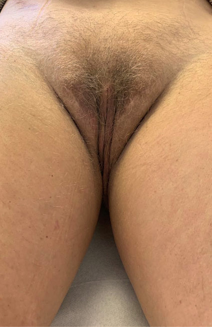 Male to female Vaginoplasty Before & after photos 04