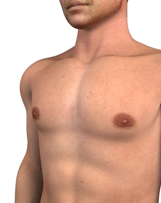 Gynecomastia SURGERY FOR MEN Ocean Clinic Marbella Spain