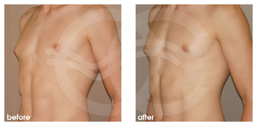 Plastic Surgery for Men Before After Gynecomastia Male Breast Reduction Photo side Marbella Ocean Clinic