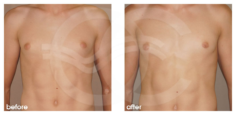 Plastic Surgery for Men Before After Gynecomastia Male Breast Reduction Photo frontal Marbella Ocean Clinic