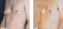 Surgery for Men Before After Gynecomastia Photo Ocean Clinic case 02 Marbella