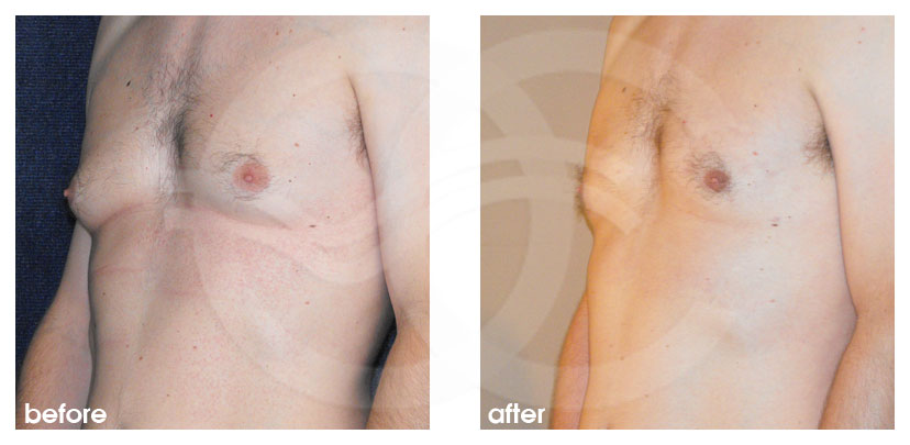Plastic Surgery for Men Before After Gynecomastia Surgery Breast Reduction (Male) Photo side Marbella Ocean Clinic