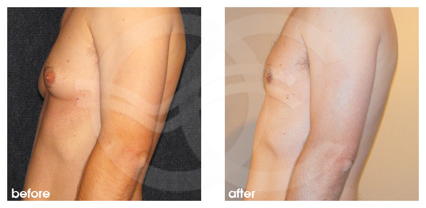 Cirugía Plástica Masculina Antes Después Ginecomastia y Cirugía Reducción de Senos (Masculino) Foto frente Marbella Ocean Clinic