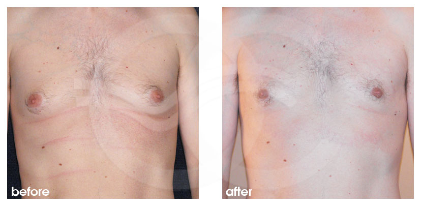 Plastic Surgery for Men Before After Gynecomastia Surgery Breast Reduction (Male) Photo frontal Marbella Ocean Clinic