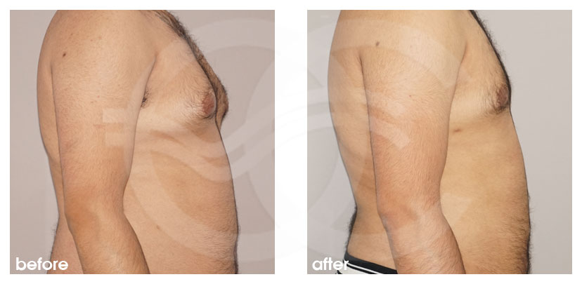 Plastic Surgery for Men Before After Gynecomastia Male Breast (Gland) Reduction Surgery Photo profile Marbella Ocean Clinic
