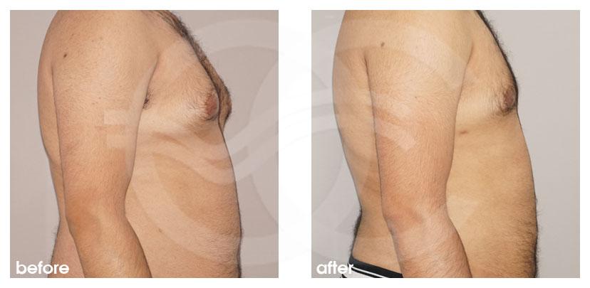 Cirugía Plástica Masculina Antes Después Ginecomastia y Cirugía de Reducción de Mama (Glándula) Foto lado Marbella Ocean Clinic