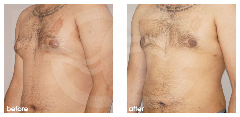 Plastic Surgery for Men Before After Gynecomastia Male Breast (Gland) Reduction Surgery Photo side Marbella Ocean Clinic