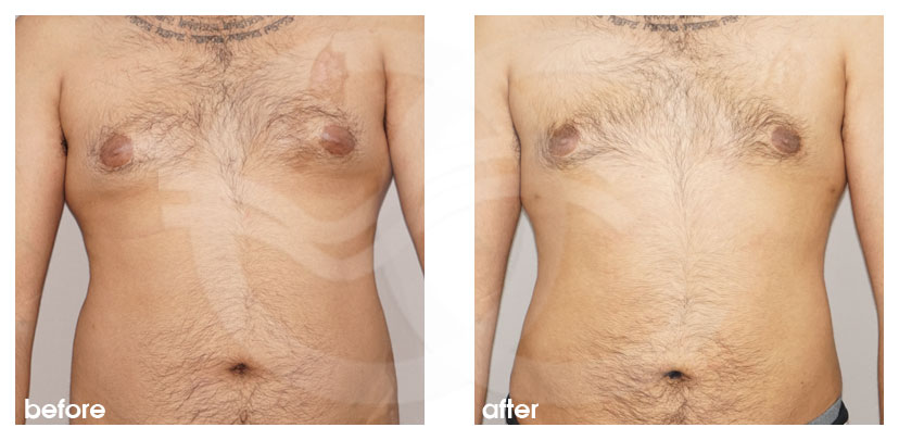 Plastic Surgery for Men Before After Gynecomastia Male Breast (Gland) Reduction Surgery Photo frontal Marbella Ocean Clinic