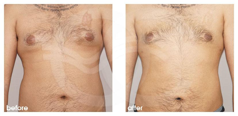 Cirugía Plástica Masculina Antes Después Ginecomastia y Cirugía de Reducción de Mama (Glándula) Foto atrás Marbella Ocean Clinic