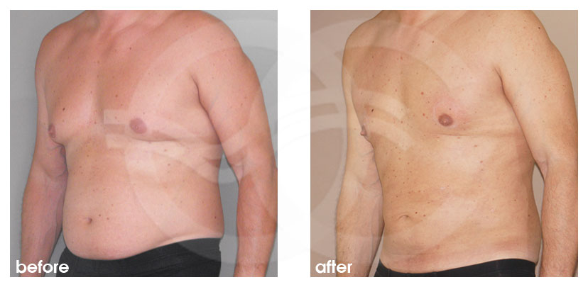 Plastic Surgery for Men Before After Gynecomastia Male Chest Contouring Photo side Marbella Ocean Clinic