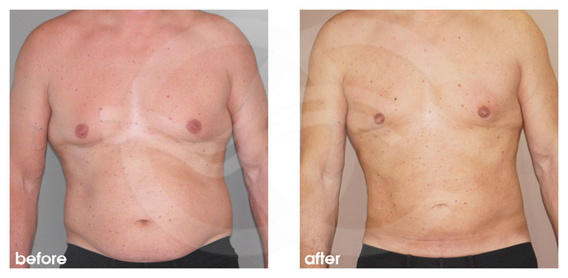 Plastic Surgery for Men Before After Gynecomastia Male Chest Contouring Photo frontal Marbella Ocean Clinic