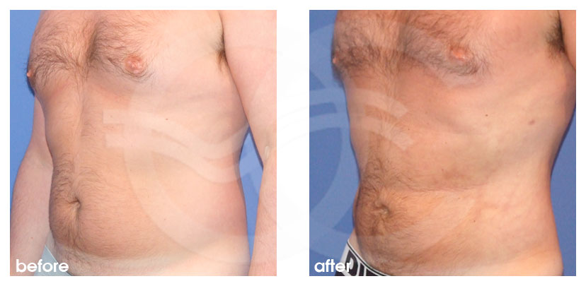 Plastic Surgery for Men Before After Gynecomastia and Body Contouring Chest, Abdomen  and Love Handles Photo side Marbella Ocean Clinic
