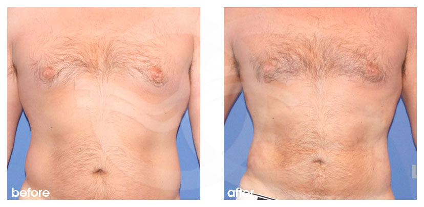 Plastic Surgery for Men Before After Gynecomastia and Body Contouring Chest, Abdomen  and Love Handles Photo frontal Marbella Ocean Clinic