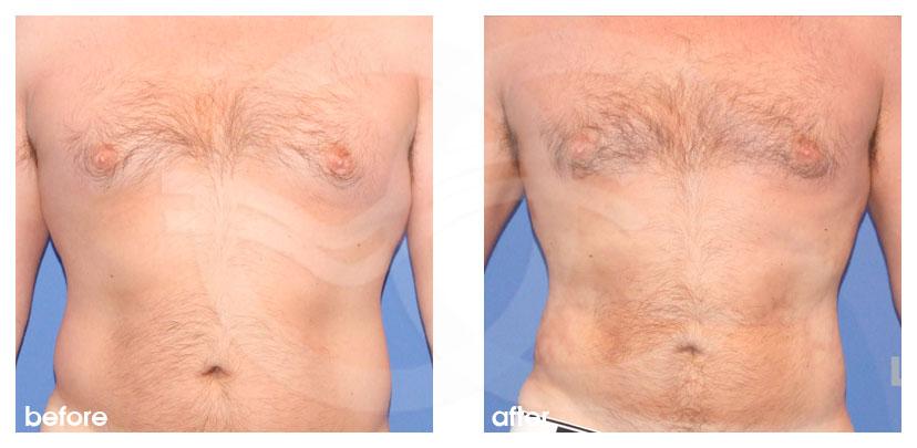 Cirugía Plástica Masculina Antes Después Ginecomastia y contorno corporal pecho, abdomen y la cintura Foto frente Marbella Ocean Clinic