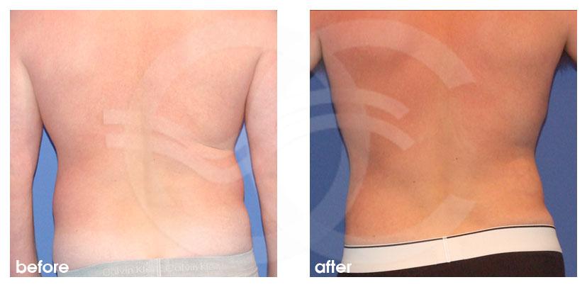 Cirugía Plástica Masculina Antes Después Ginecomastia y contorno corporal pecho, abdomen y la cintura Foto atrás Marbella Ocean Clinic
