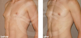 Surgery for Men Before and After Gynecomastia Male Breast Reduction. Marbella Ocean Clinic