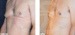 cirugía estética masculina Antes y Después Ginecomastia Cirugía Reducción de Senos (Masculino). Marbella Ocean Clinic