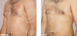 Surgery for Men Before and After Gynecomastia Male Breast (Gland) Reduction Surgery. Marbella Ocean Clinic