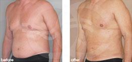 cirugía estética masculina Antes y Después Ginecomastia Male contorno del pecho. Marbella Ocean Clinic