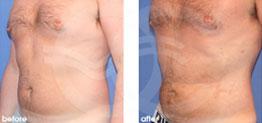 cirugía estética masculina Antes y Después Ginecomastia y contorno corporal. Marbella Ocean Clinic