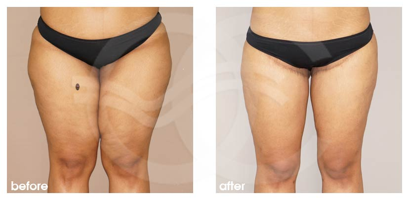 Thigh Lift Ocean Clinic Marbella Spain