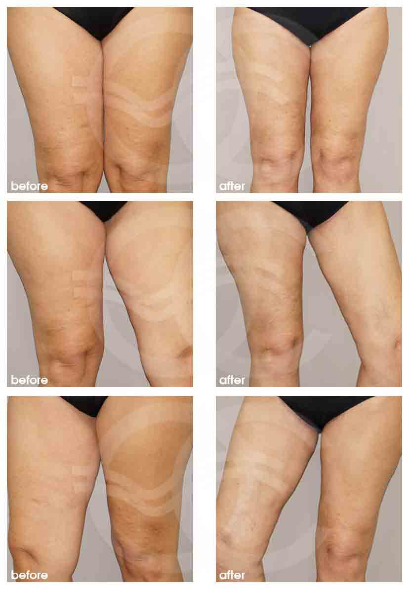 Thigh Lift Thigh Lift with Liposculpture legs/ thighs / knees using water jet technique, 3 months postoperatively Ocean Clinic Marbella Spain