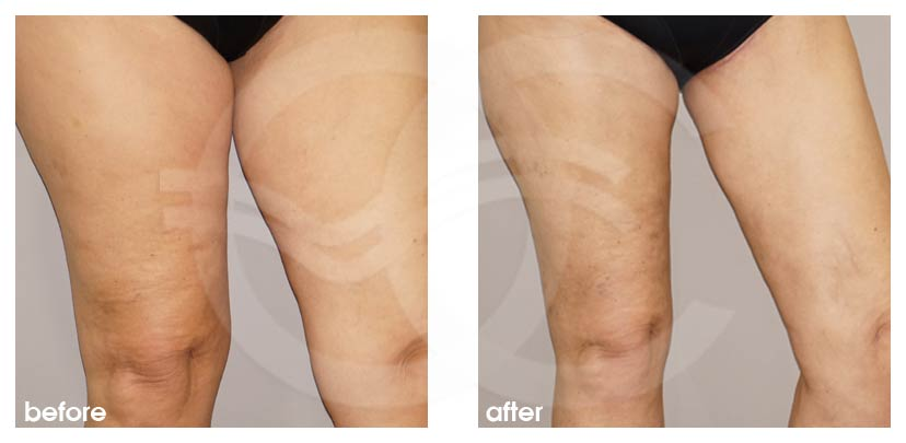 Thigh Lift Before After Photo Ocean Clinic Marbella Spain