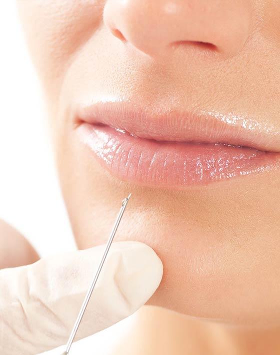 Tratamientos estéticos de la piel