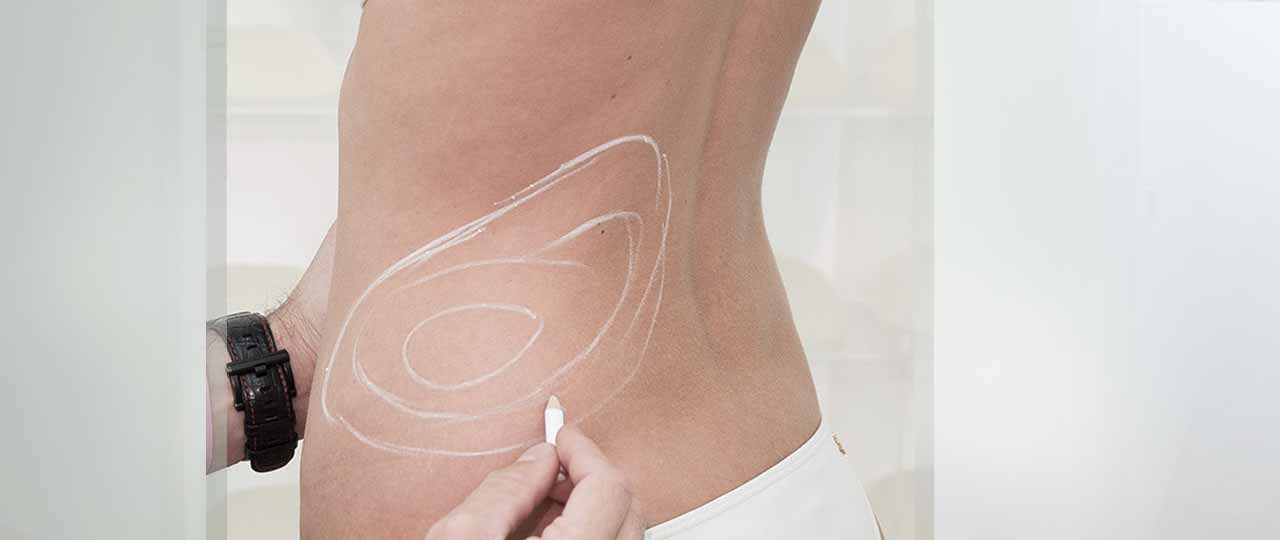 Treatments Body Contouring Ocean Clinic Marbella Spain
