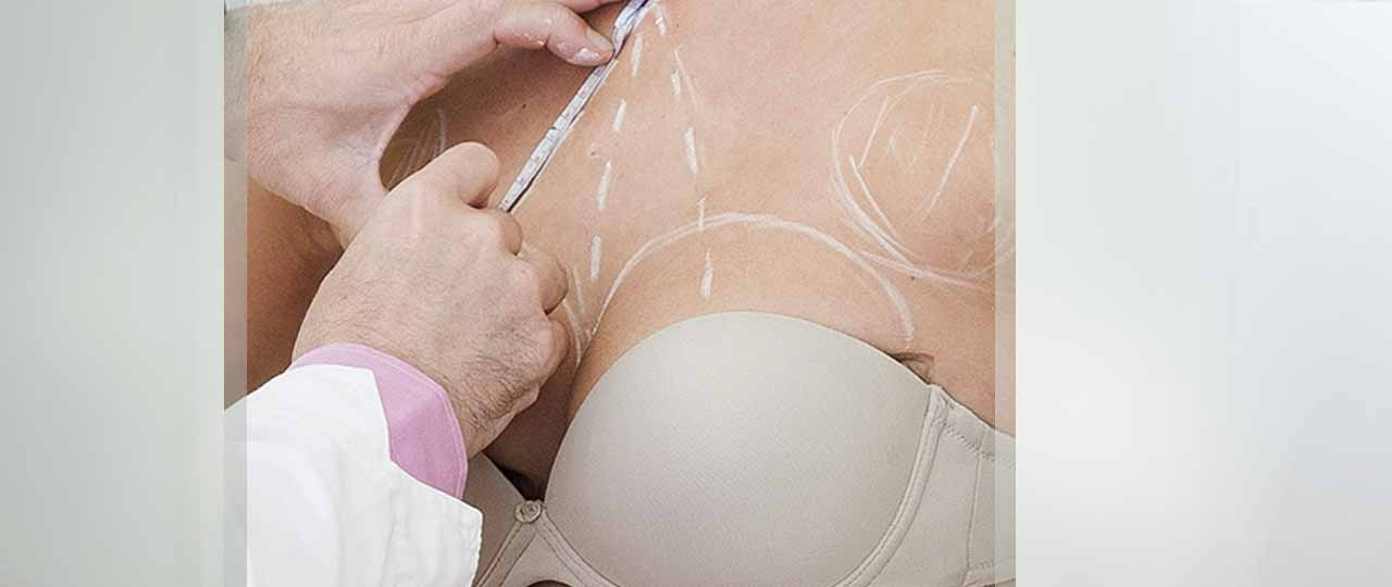 Treatments Breast Surgery Ocean Clinic Marbella Spain