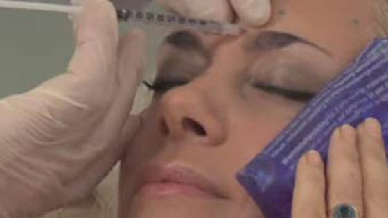 Treatments Botox Ocean Clinic Marbella Spain