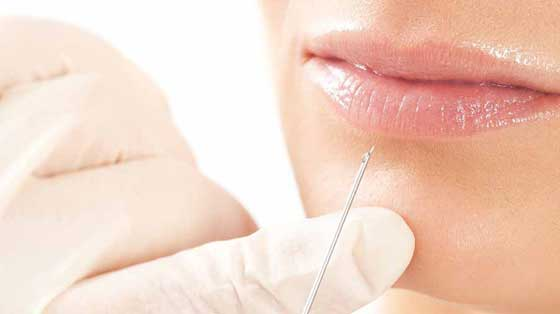 Treatments Injectable Fillers Ocean Clinic Marbella Spain
