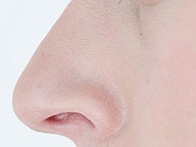 Tratamiento cirugía de nariz Ocean Clinic Marbella Spain